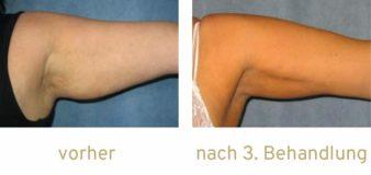 Fettwegspritze Injektionslipolyse lipolyse Fettabbau Kryolipolyse Arme Arm