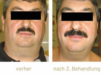 Triemer Aeshetics Dresden Fett Fettweg Fettwegspritze Injektionslipolyse lipolyse Fettabbau Kryolipolyse Doppelkinn Hamsterbäckchen