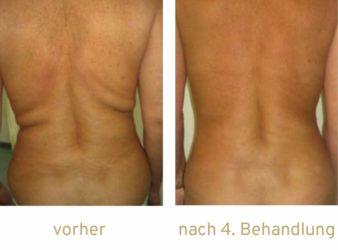 Fettwegspritze Injektionslipolyse lipolyse Fettabbau Kryolipolyse Bauch Flanken