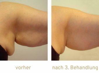 Triemer Aeshetics Dresden Fett Fettweg Fettwegspritze Injektionslipolyse lipolyse Fettabbau Kryolipolyse Arme Arm