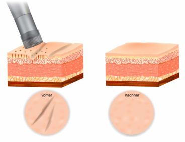 Triemer Aeshetics Dresden Kosmetik Mikroneedling microneedling Narben Aknenarben edermastamp dermastamp dermapen dermaroller