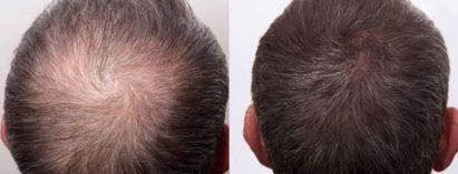 Triemer Aeshetics Dresden Mann Behandlung Haare Haarausfall Alopezie PRP Eigenblut Eigenplasma